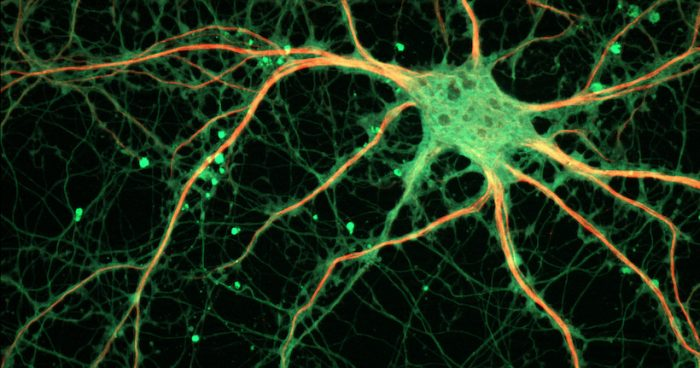 Cultured_Rat_Hippocampal_Neuron_24327909026-700x368